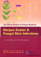 The Clinical Practice of Chinese Medicine: Herpes Zoster & Fungal Skin Infections