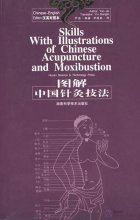 Skills with Illustrations of Chinese Acupuncture and Moxibustion (Chinese-English Edition)